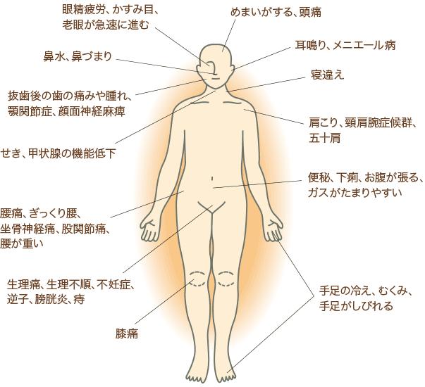 図-はりきゅうで治療できる症状